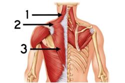 stiff-shoulder2.png